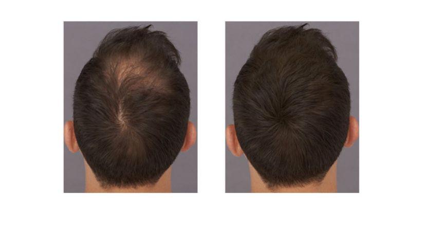 HairFortin Dosage