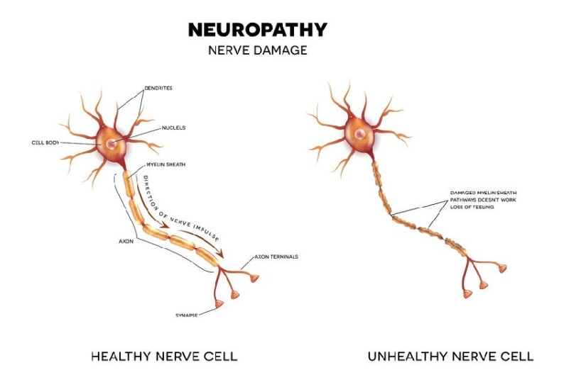 Neuropathy ebook