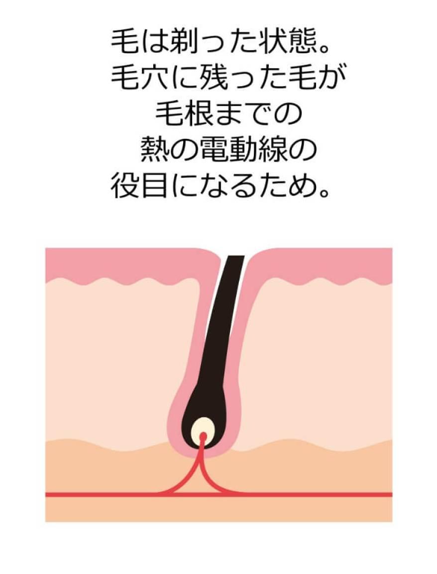 1. 毛を剃った状態で施術をスタート