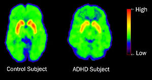 High Dopamine Transporter Levels
