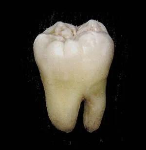 A third molar.