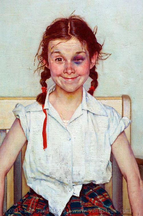 the young lady with the shiner