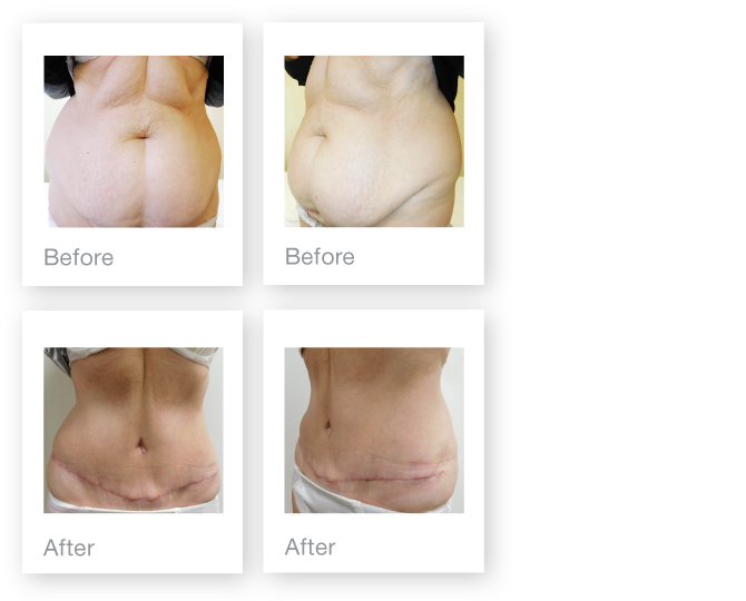 David Oliver Abdominoplasty surgery before & after Sept 2016