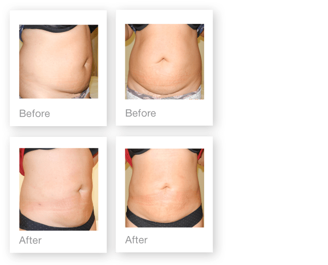 David Oliver abdominoplasty surgery before & after October 2015
