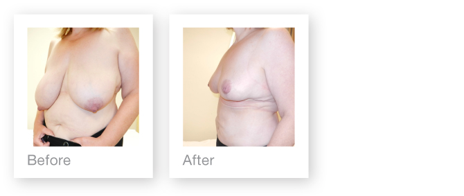 Breast Reduction before and after surgery by Mr David Oliver, Cosmetic Surgeon, Devon