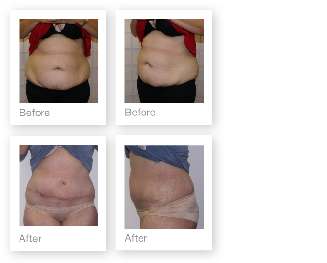 Addominoplasty (tummy tuck) by David Oliver, plastic surgeon before & after results 3
