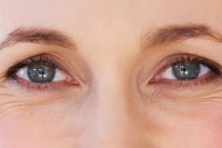 Blepharoplasty by cosmetic surgeon David Oliver