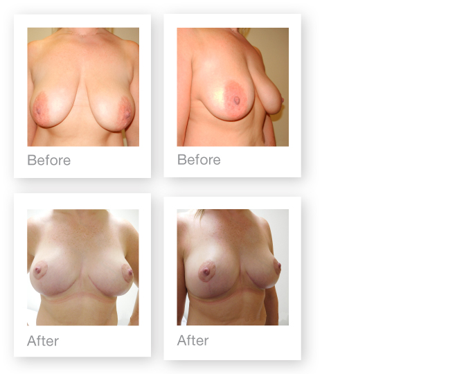 David Oliver Cosmetic Surgeon Breast Surgery Mastopexy before & after June 2016