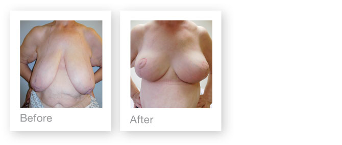David Oliver breast reduction surgery July 2016 before & after results