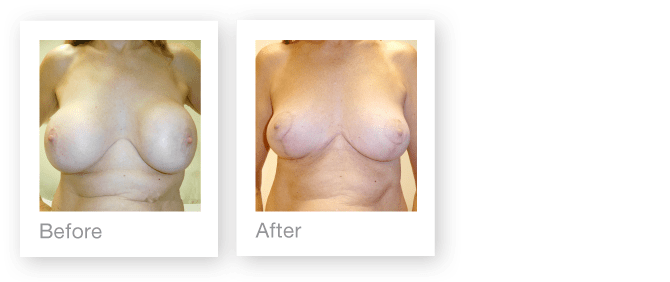 Breast implant removal & breast uplift surgery before & after by David Oliver, Cosmetic surgery Devon - November 2016