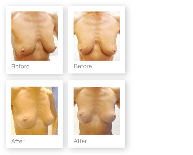 mastopexy-breast-surgery-before-after-david-oliver-cosmetic-surgeon-nov-2016