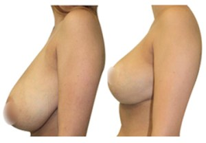Breast reduction Hypnotherapy