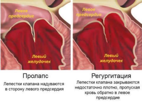 magas vérnyomás kezelése szoptatás alatt az idősek magas vérnyomása