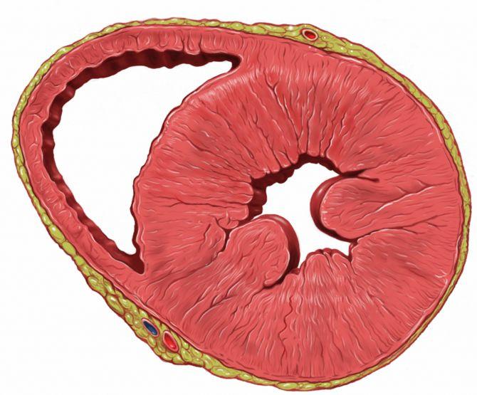 Гипертрофия левого желудочка лечение народными средствами
