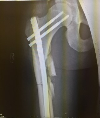 Post-Surgery X-rays