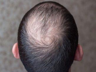 Die Praxis für Dermatologie, Dr. Beatrice Gerlach, führt eine Studie zu Haarausfall durch. Foto: PR