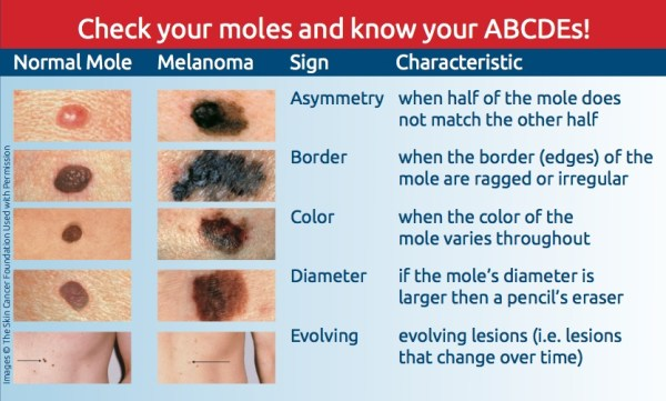 The Top 10 Thing You Need to Know about Melanoma Awareness Month ...