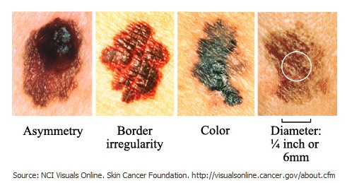 May is National Skin Cancer Awareness Month