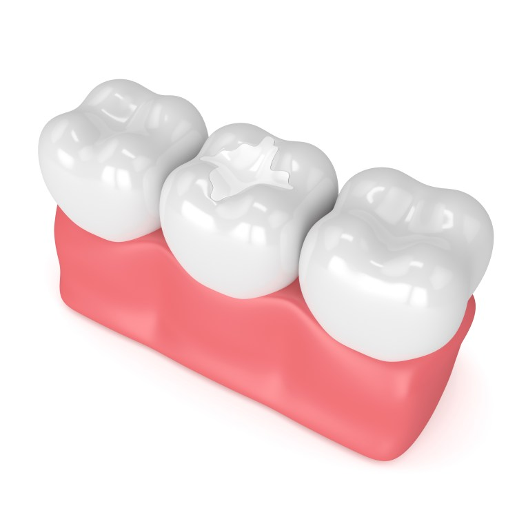 Modern dental bonding technology allows us to place beautiful, natural looking fillings that last a long time.