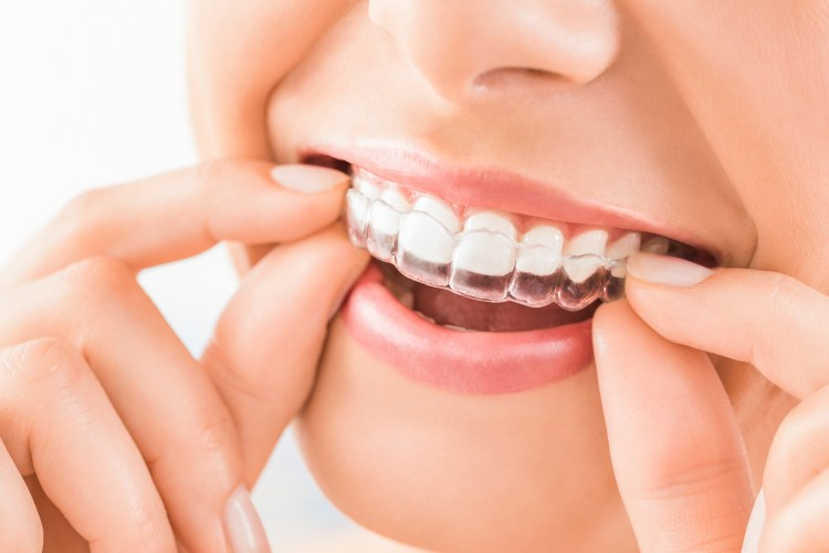 Invisalign You can straighten your teeth without braces!