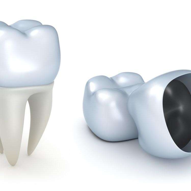 crowns repair fractured teeth