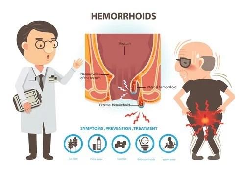 Hemorrhoids Category