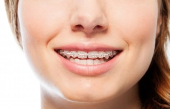 How To Stay Confident While Having Orthodontic Treatment