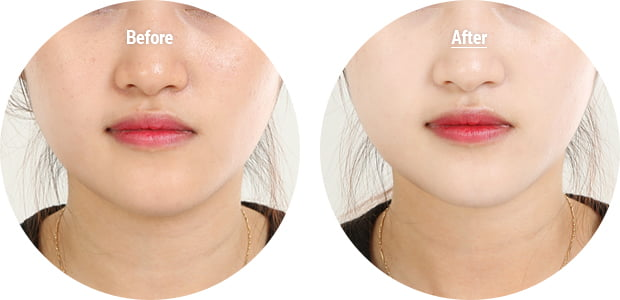 leilani_wearwhitefacewhiteningfinisher_beforeafter