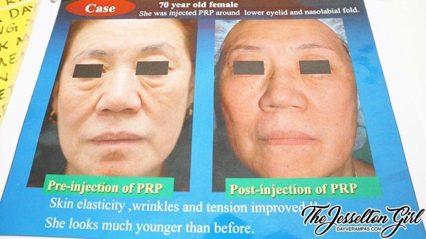 The Jesselton Girl Experience: Platelet Rich Plasma (PRP) Treatment @ Klinik Mediglow Dr. Hema (Sabah)