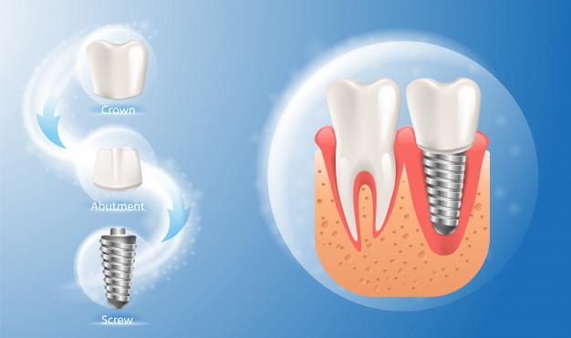 حشوات الأسنان