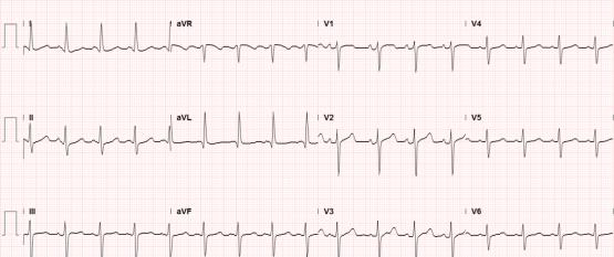 Sinus tachycardia, LVH, secondary repolarization abnormalities