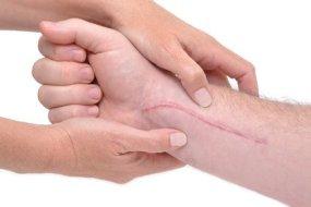 Narben: Weg mit ihnen mit diesen wirksamen Tipps