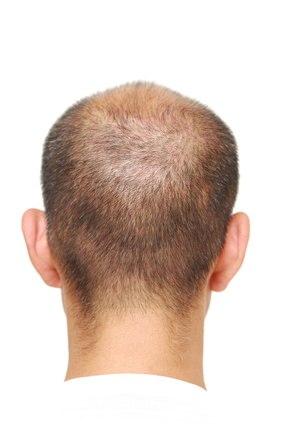 Kahlheit und Haarausfall verhindern mit Säften und unfehlbaren Tipps