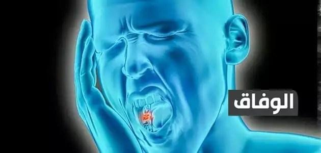 تسكين ألم الأسنان العصب