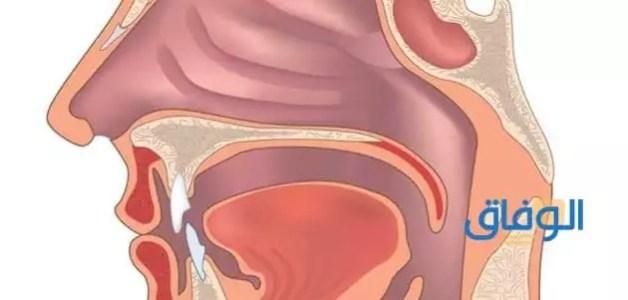 علاج التهاب الحلق والاذن