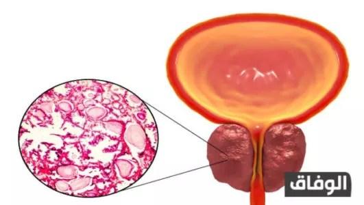 الجديد في علاج التهاب البروستاتا