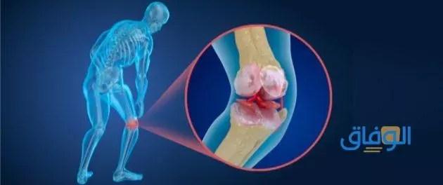 التهاب الغضروف في الركبة