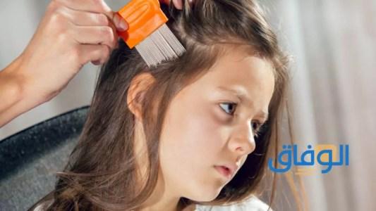 تقصف الشعر لدى الأطفال