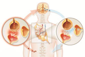 What is Neuropathic pain and medicines