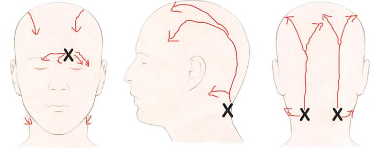 Image result for migraine surgeries