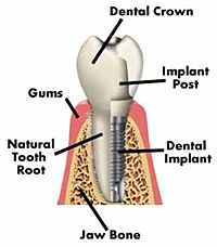 Learn about Dental Implants by Dean Cosmetic Dentistry