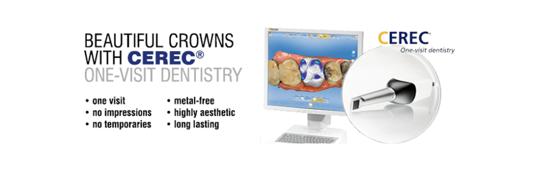 Crowns with Cerec from your Knoxville Dentist