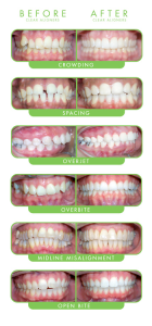 Examples of clearcorrect - straight teeth no metal braces
