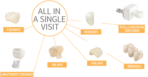 Cerec One Visit Dental Crowns