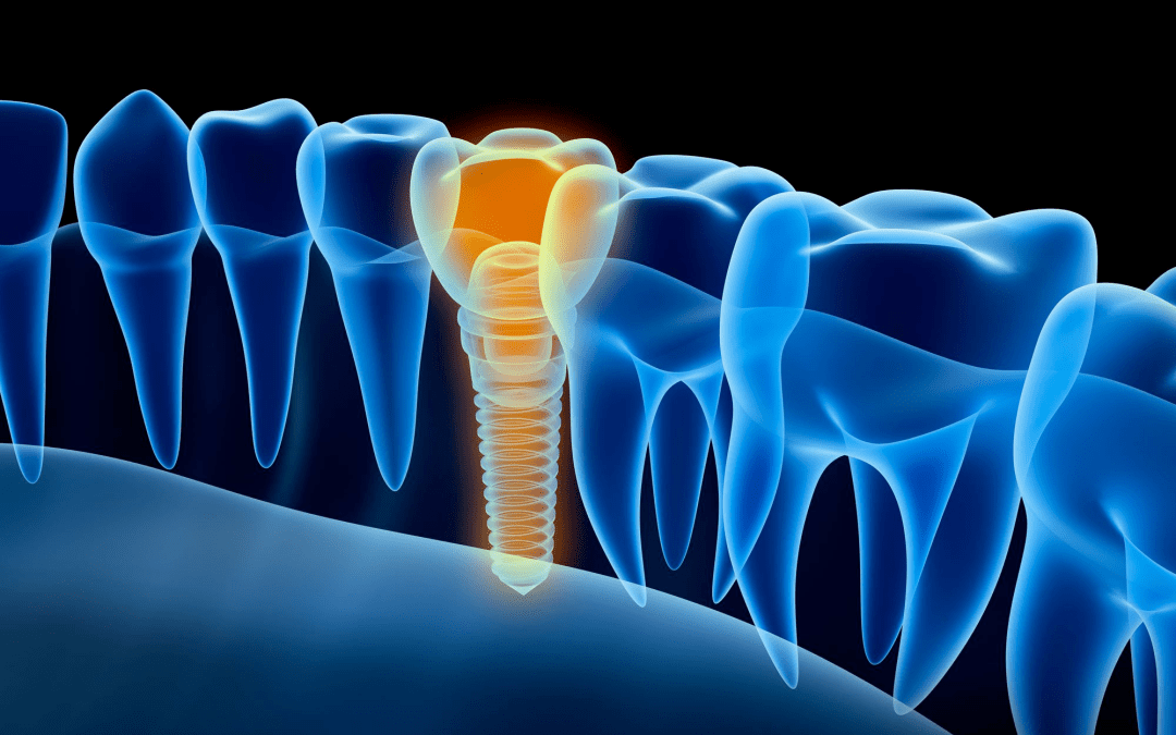 Let's talk about A Better Smile With Dental Implants