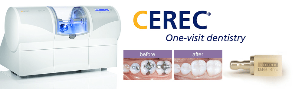 Details On The One Appointment Crown Cerec by Dr Donnie Dean