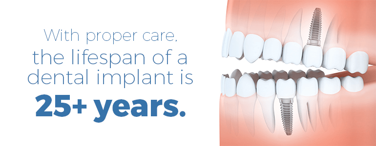 Missing Teeth?  Dental Implants Can Be Lead You To Smile Again!