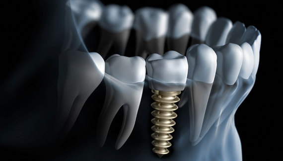 Dental Implants Allow you to never live with missing teeth