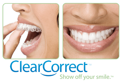 A Straighter, Whiter Smile for Christmas Is Easier Than You Think