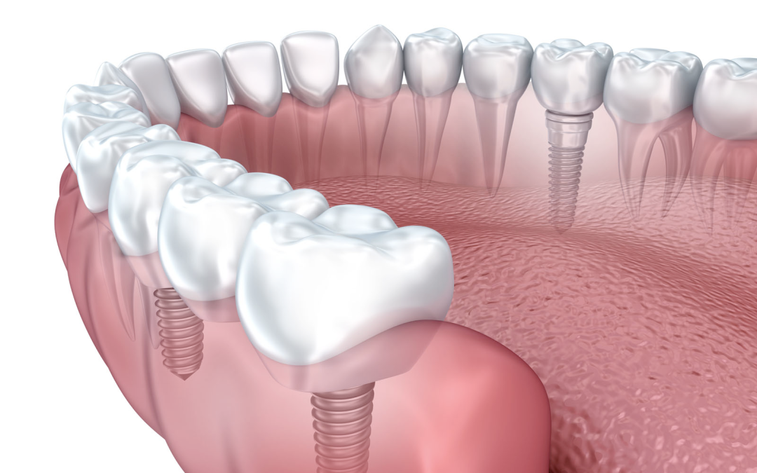 Dental Implants are finally an affordable option to missing teeth